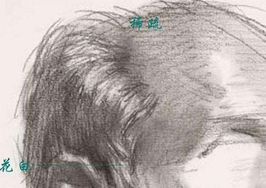 2、用标准的手法表现头发的高光 考试时最常用到的处理头发高光的方法是:先把对象头发的固有色画出来,然后再用削尖的硬橡皮顺着头发的走向来回擦,擦出一种似亮非亮的感觉,也就是毛发质感的感觉。如果擦的过程中不小心擦宽了某些部位,可以用笔再压一压,补画上头发纤细的感觉。 另外,在表现老年人头发的高光时千万不能忽略了老年人头发本身所具备的特征,比如头发比较稀疏、花白发居多等,因此在用笔和色调上要注意,不能表现得过于浓密。